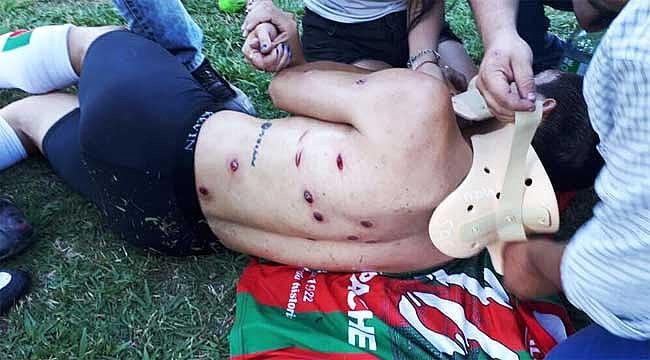 Polis, futbolcuları plastik mermiyle vurdu