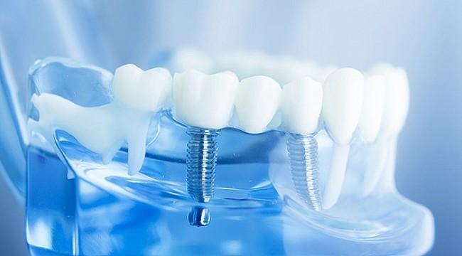 Diş İmplantınızın Ömrünü Uzatacak İpuçları