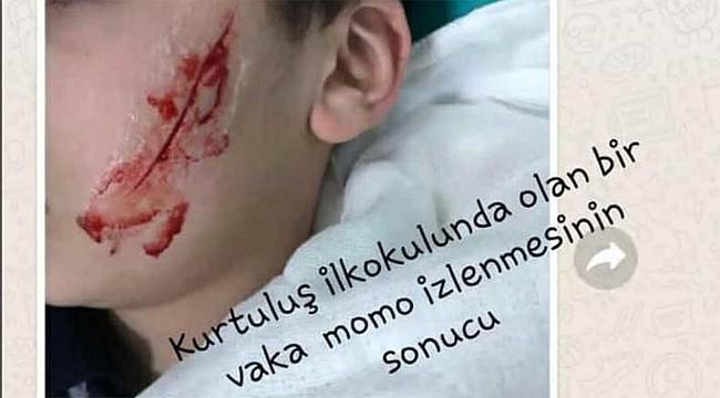 Rize'de 6. sınıf öğrencisi arkadaşının yüzünü kesti